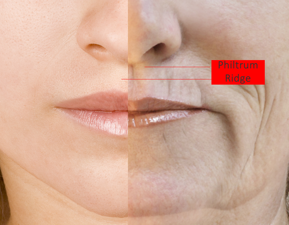 Lip Filler Injections Philtrum Ridge