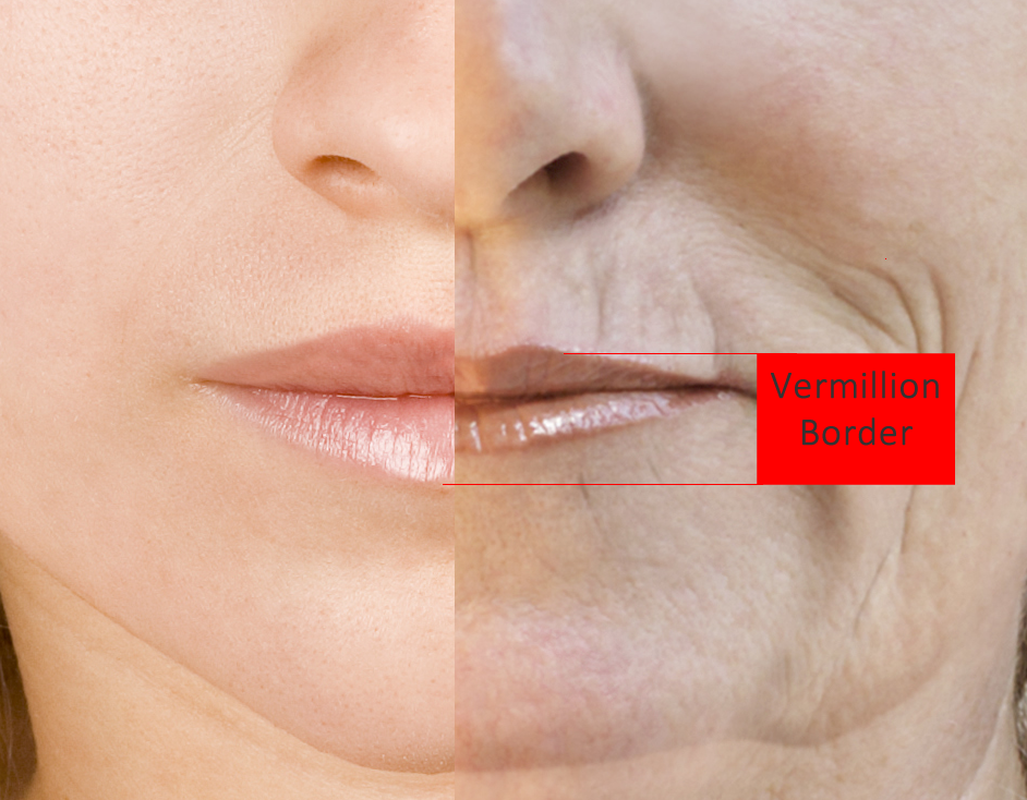 Lip Filler Injections Vermillion